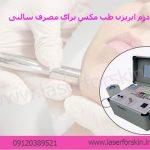 مرکز خرید دستگاه میکرودرم ابریژن طب مکس